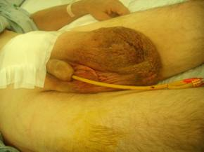 post op instructions for inguinal hernia repair
