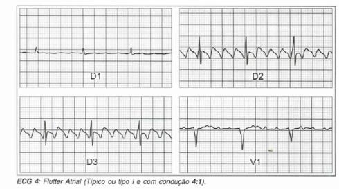 Taquicardia por reentrada nodal pdf